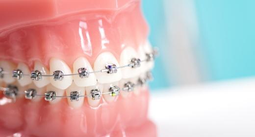 אורטודנטיה - הכל על יישור שיניים